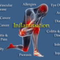 How To Reduce Inflammation and the Risk of Chronic Disease